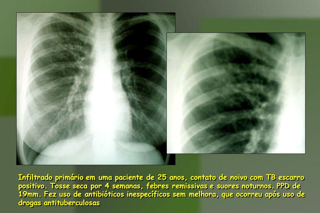 Infiltrado primário em uma paciente de 25 anos, contato de noivo com TB escarro