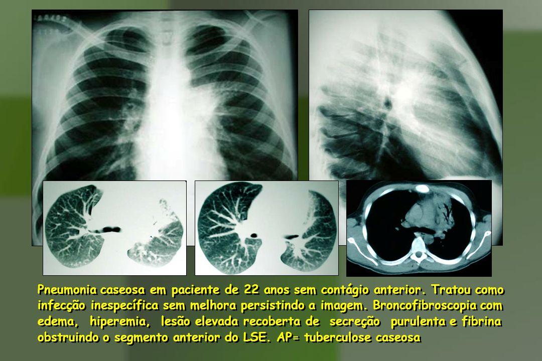 Pneumonia caseosa em paciente de 22 anos sem contágio anterior