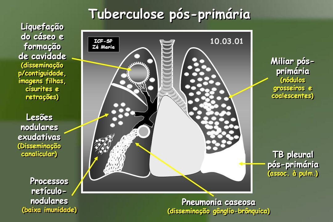 Tuberculose pós-primária
