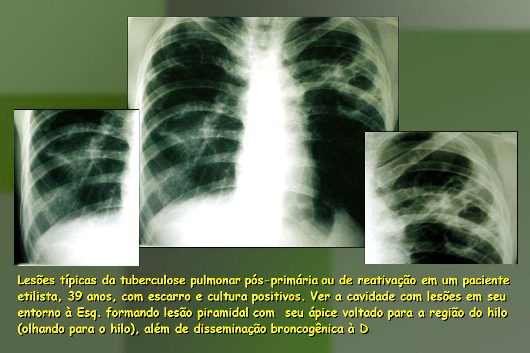 Lesões típicas da tuberculose pulmonar pós-primária ou de reativação em um paciente