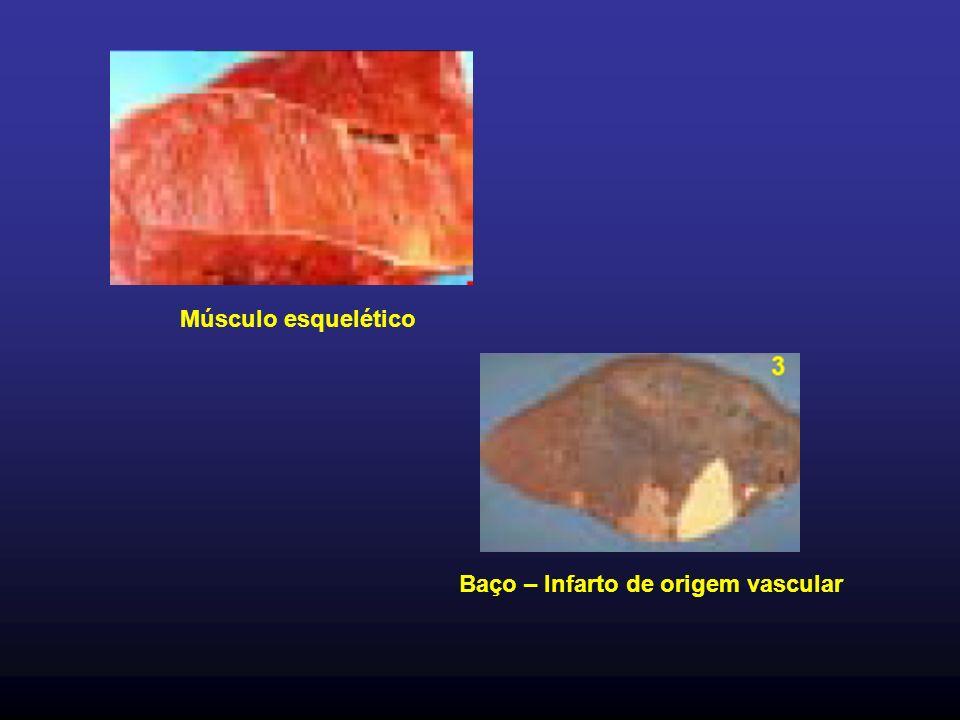Músculo esquelético Baço – Infarto de origem vascular