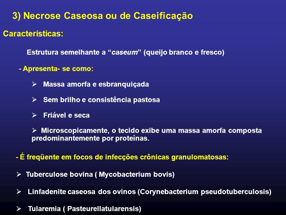 3) Necrose Caseosa ou de Caseificação