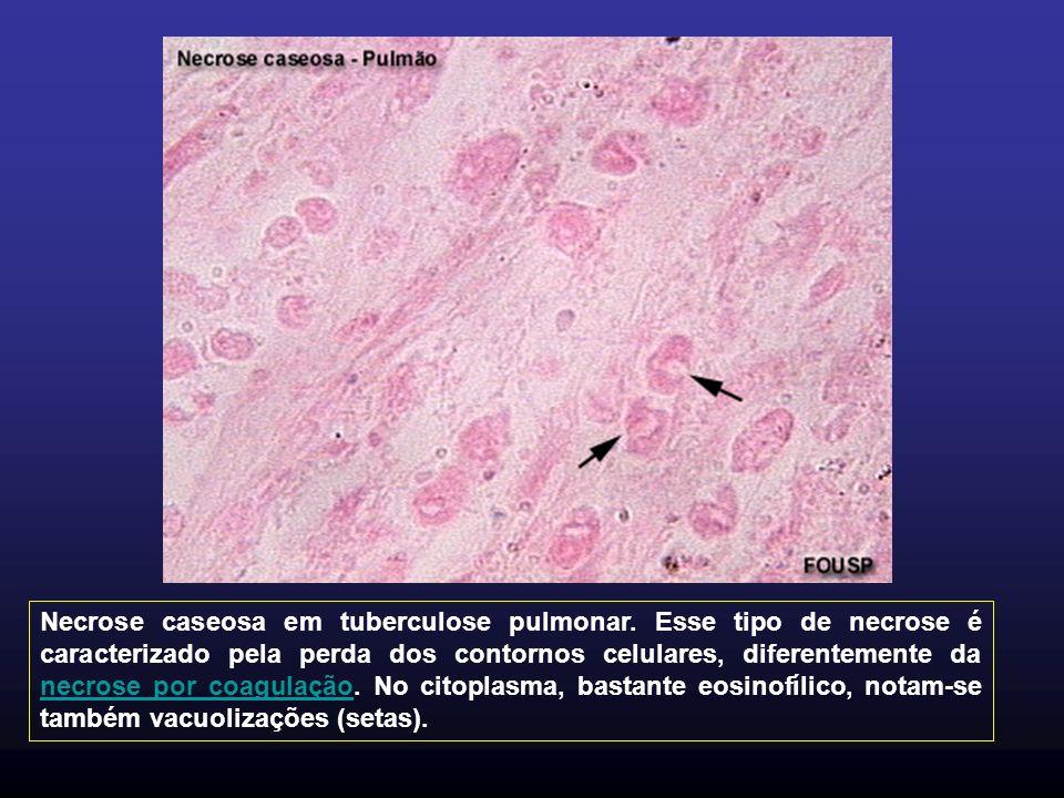 Necrose caseosa em tuberculose pulmonar