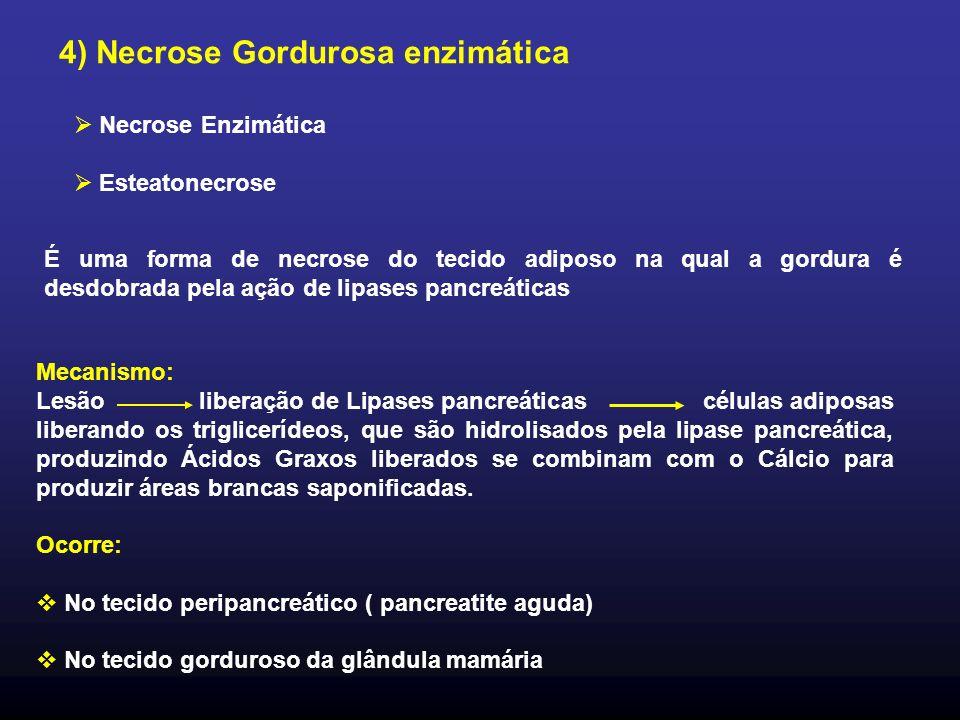 4) Necrose Gordurosa enzimática