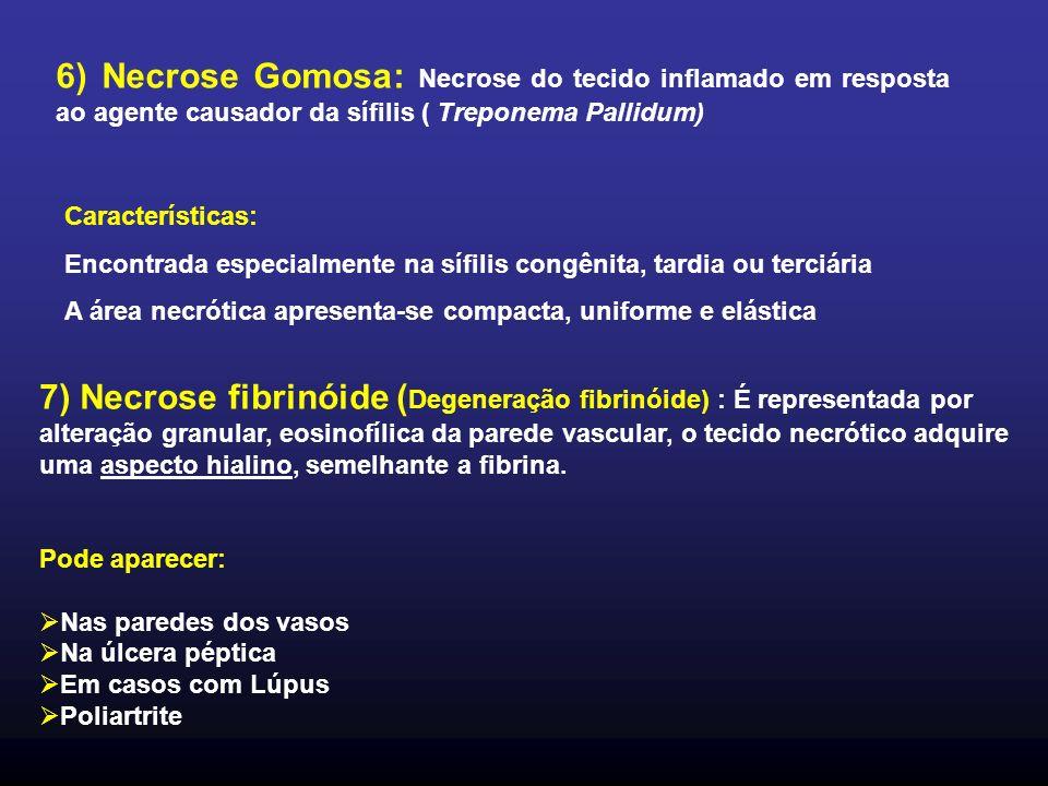 6) Necrose Gomosa: Necrose do tecido inflamado em resposta ao agente causador da sífilis ( Treponema Pallidum)