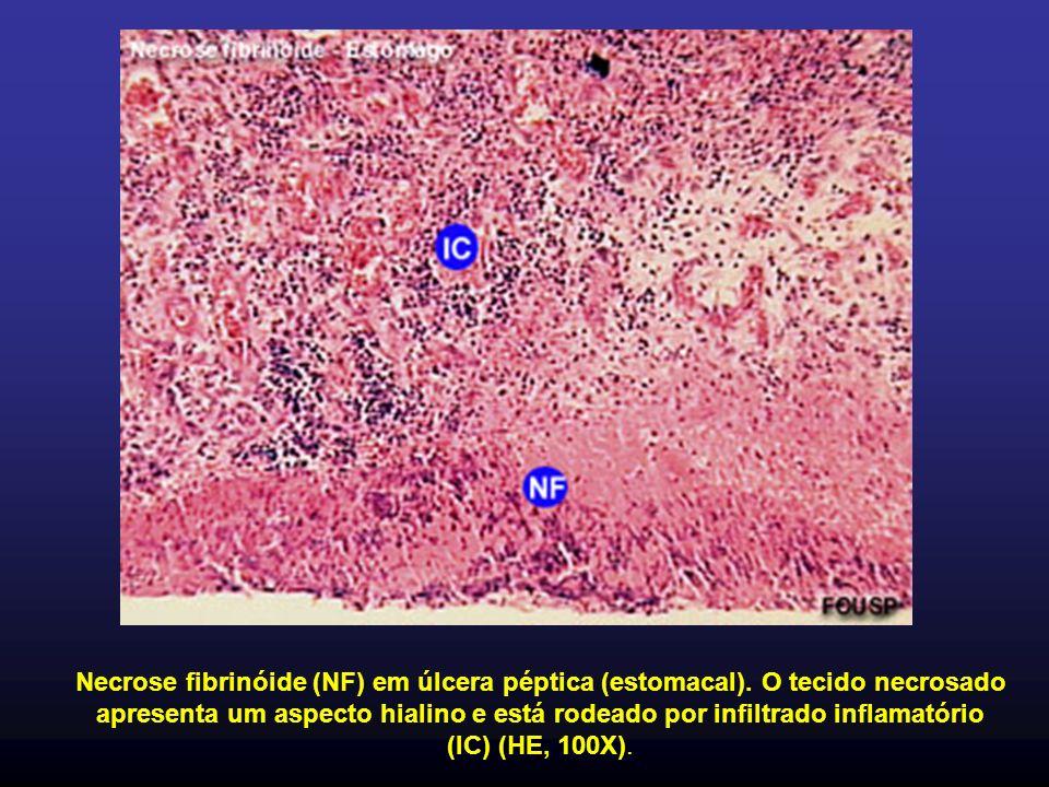 Necrose fibrinóide (NF) em úlcera péptica (estomacal)