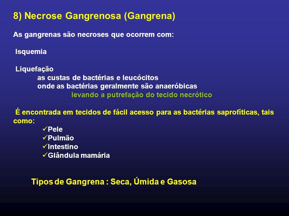 8) Necrose Gangrenosa (Gangrena)