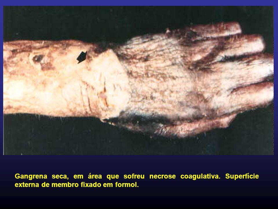 Gangrena seca, em área que sofreu necrose coagulativa