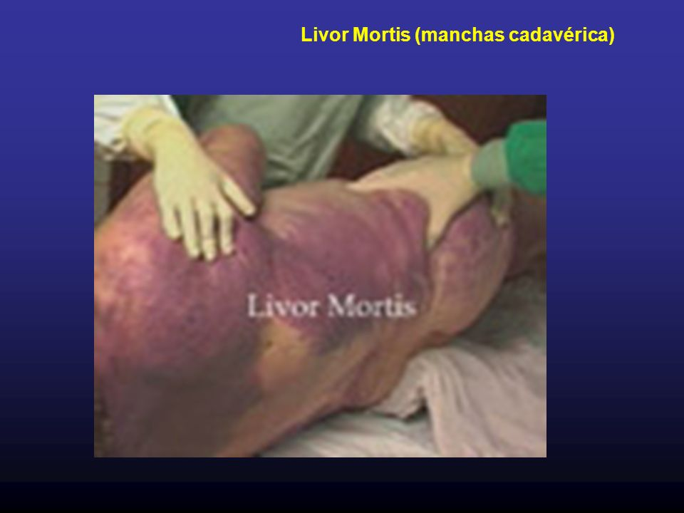 Livor Mortis (manchas cadavérica)