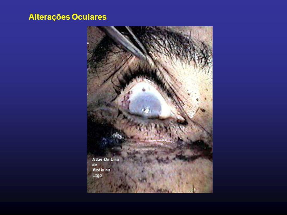 Alterações Oculares