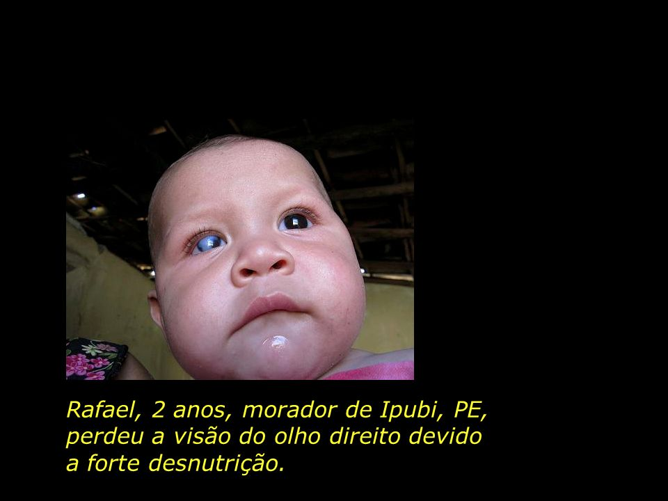 Rafael, 2 anos, morador de Ipubi, PE,