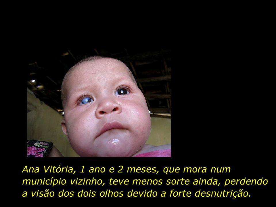 Ana Vitória, 1 ano e 2 meses, que mora num município vizinho, teve menos sorte ainda, perdendo a visão dos dois olhos devido a forte desnutrição.