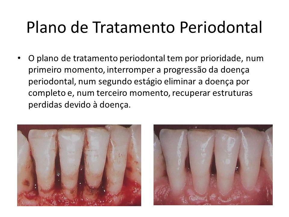 Plano de Tratamento Periodontal