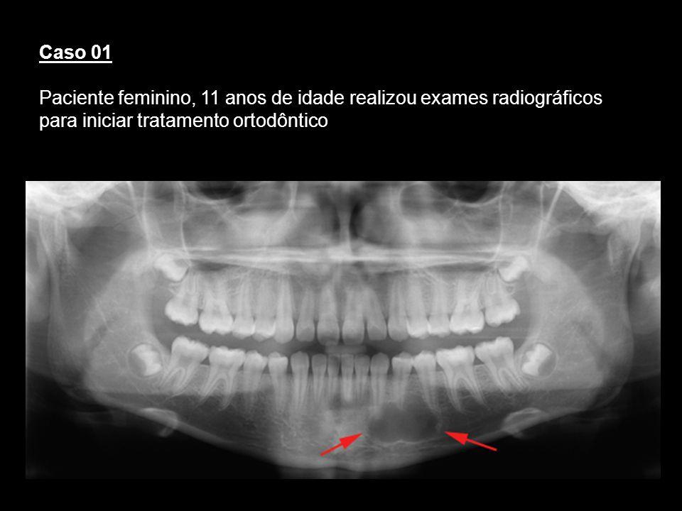 Caso 01Paciente feminino, 11 anos de idade realizou exames radiográficos para iniciar tratamento ortodôntico.