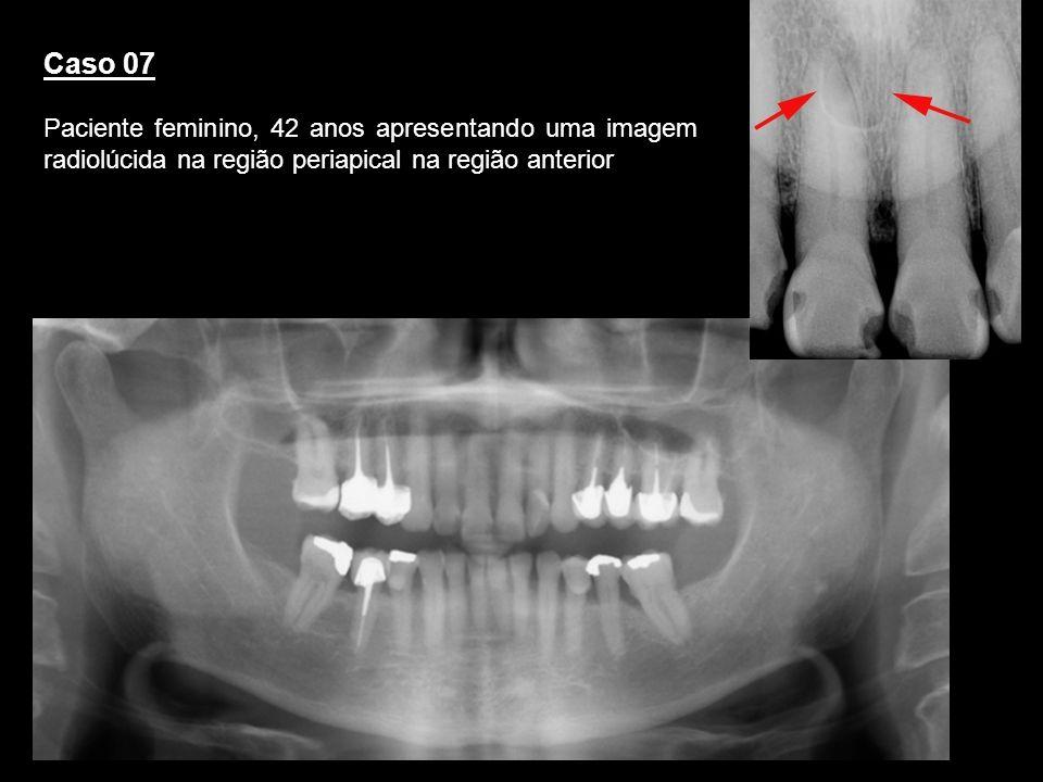 Caso 07Paciente feminino, 42 anos apresentando uma imagem radiolúcida na região periapical na região anterior.