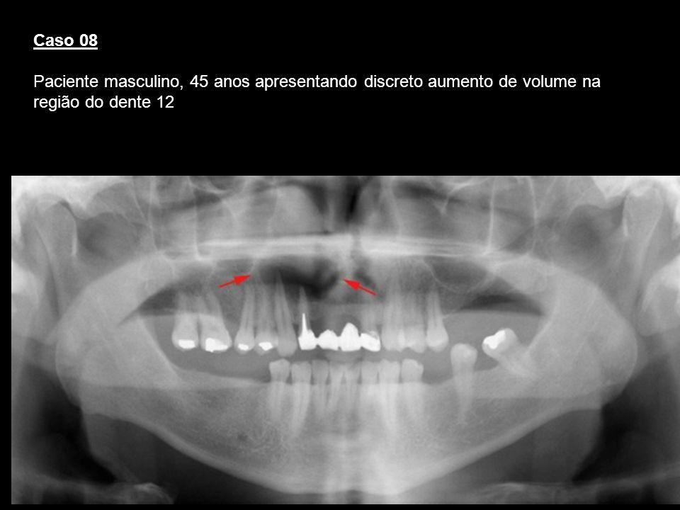 Caso 08Paciente masculino, 45 anos apresentando discreto aumento de volume na região do dente 12. Cisto periapical.