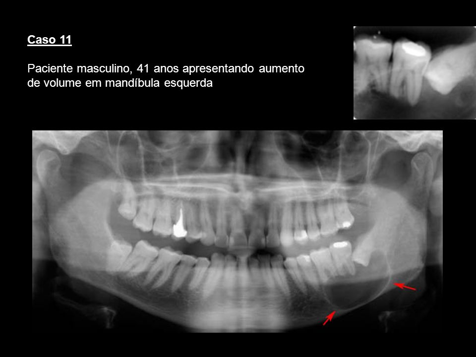 Caso 11Paciente masculino, 41 anos apresentando aumento de volume em mandíbula esquerda. Cisto dentigero.