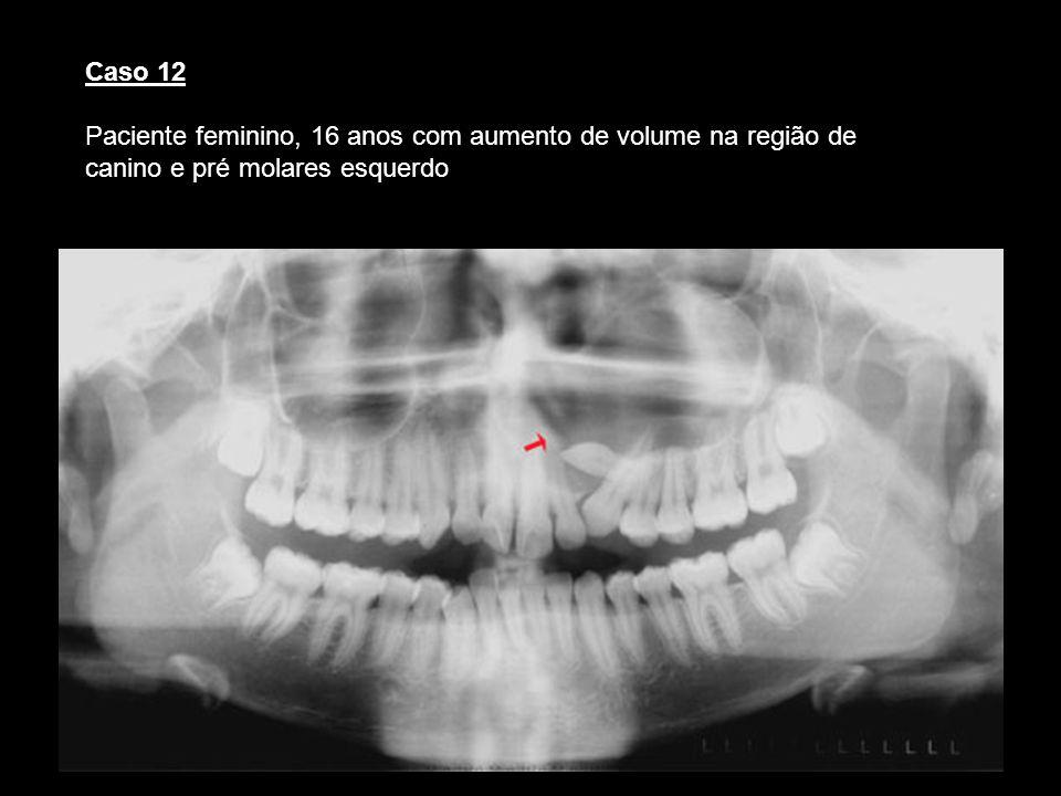 Caso 12 Paciente feminino, 16 anos com aumento de volume na região de canino e pré molares esquerdo.