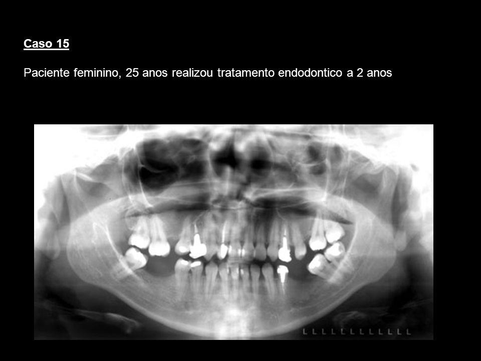 Paciente feminino, 25 anos realizou tratamento endodontico a 2 anos