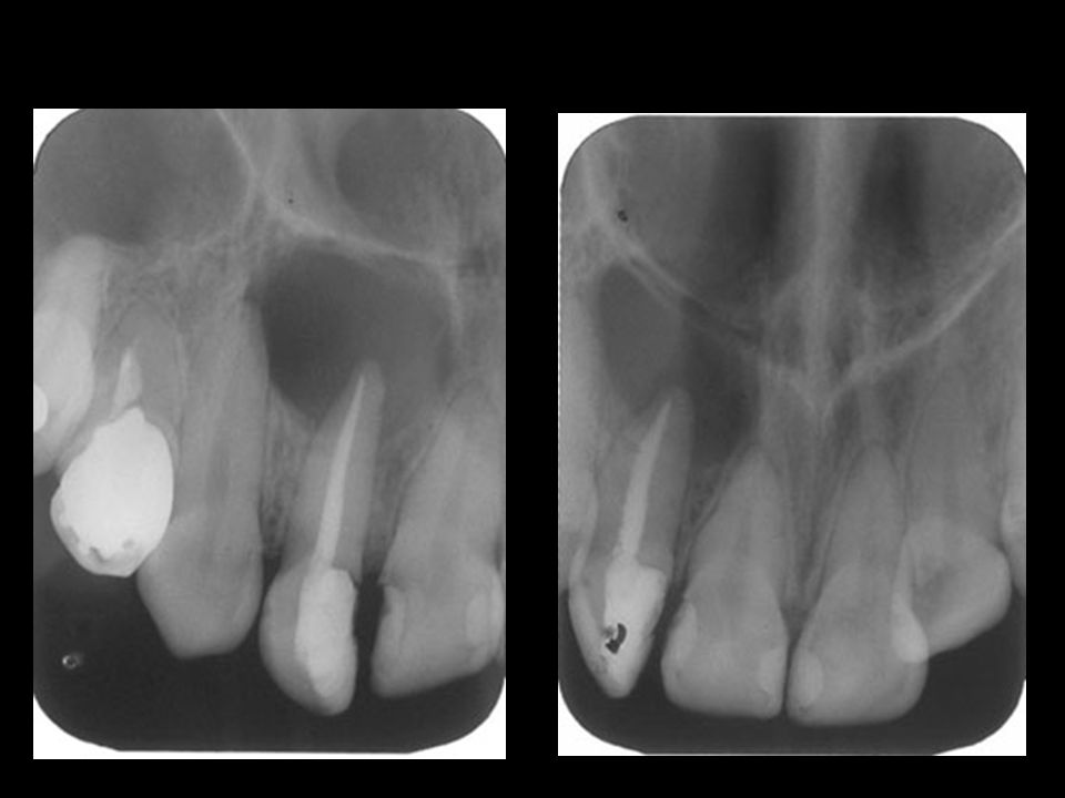 Cisto periapical