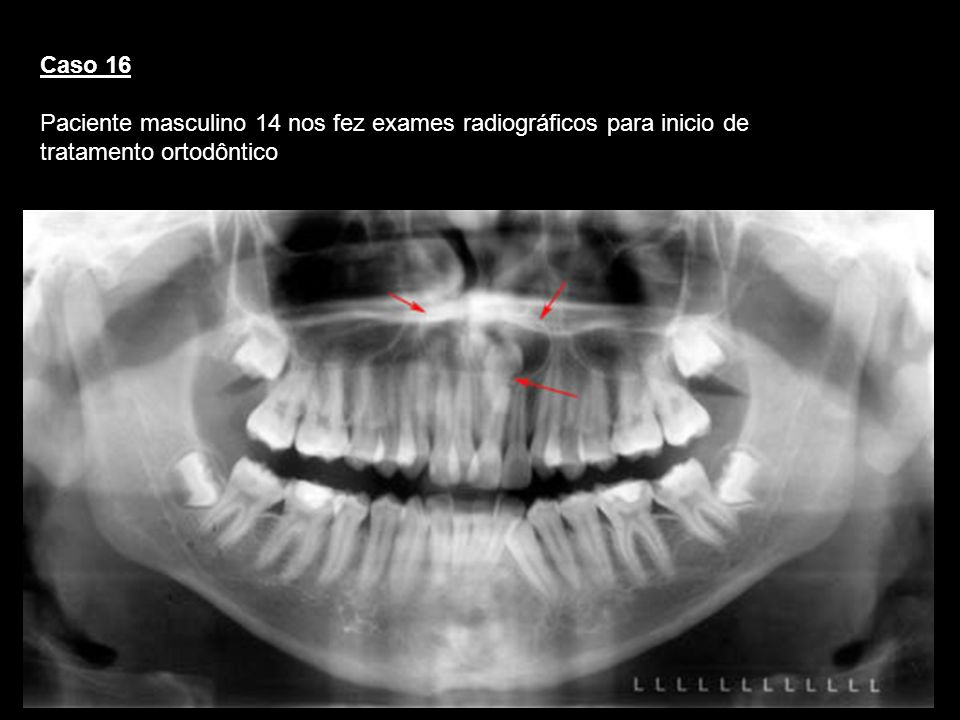 Caso 16Paciente masculino 14 nos fez exames radiográficos para inicio de tratamento ortodôntico. Cisto dentigero.