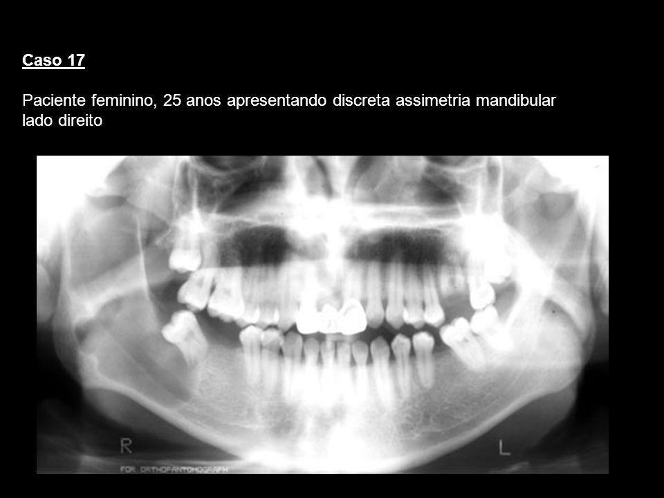 Caso 17Paciente feminino, 25 anos apresentando discreta assimetria mandibular lado direito. Querato.
