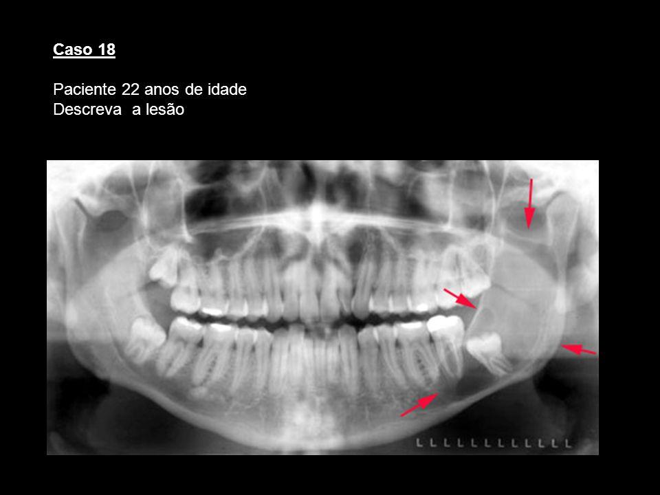 Caso 18 Paciente 22 anos de idade Descreva a lesão Queratocisto