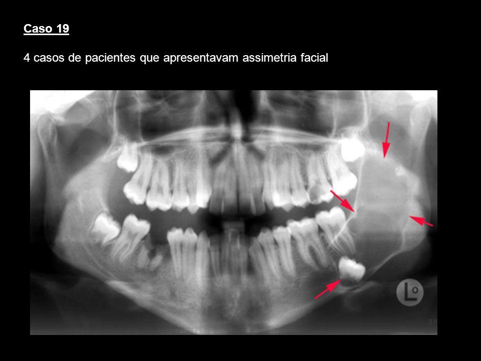 4 casos de pacientes que apresentavam assimetria facial