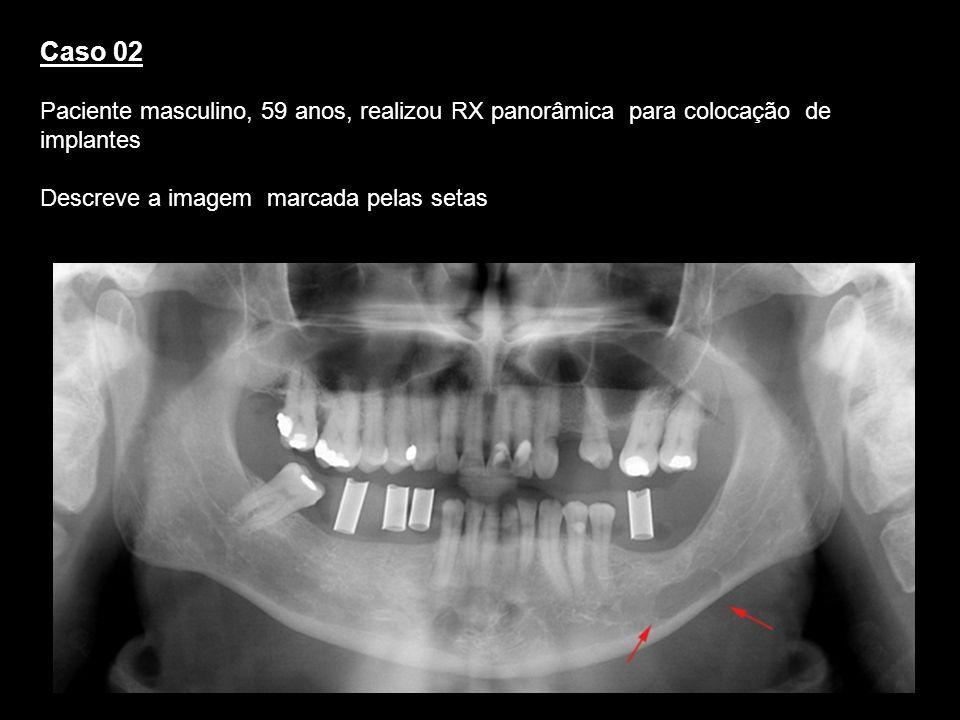 Caso 02Paciente masculino, 59 anos, realizou RX panorâmica para colocação de implantes. Descreve a imagem marcada pelas setas.