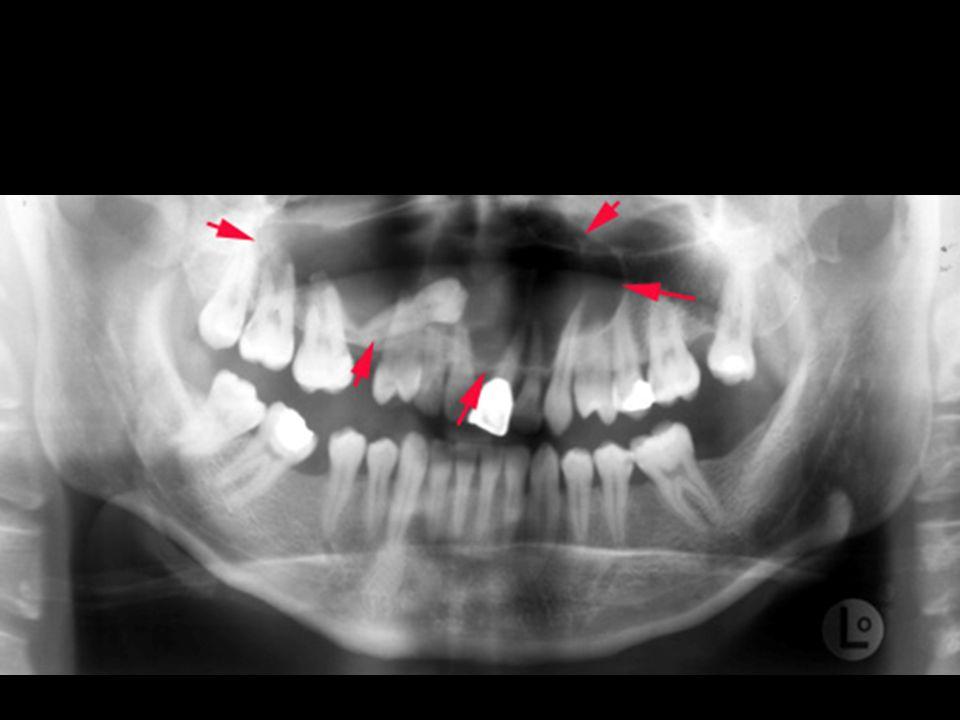 Cisto dentigero