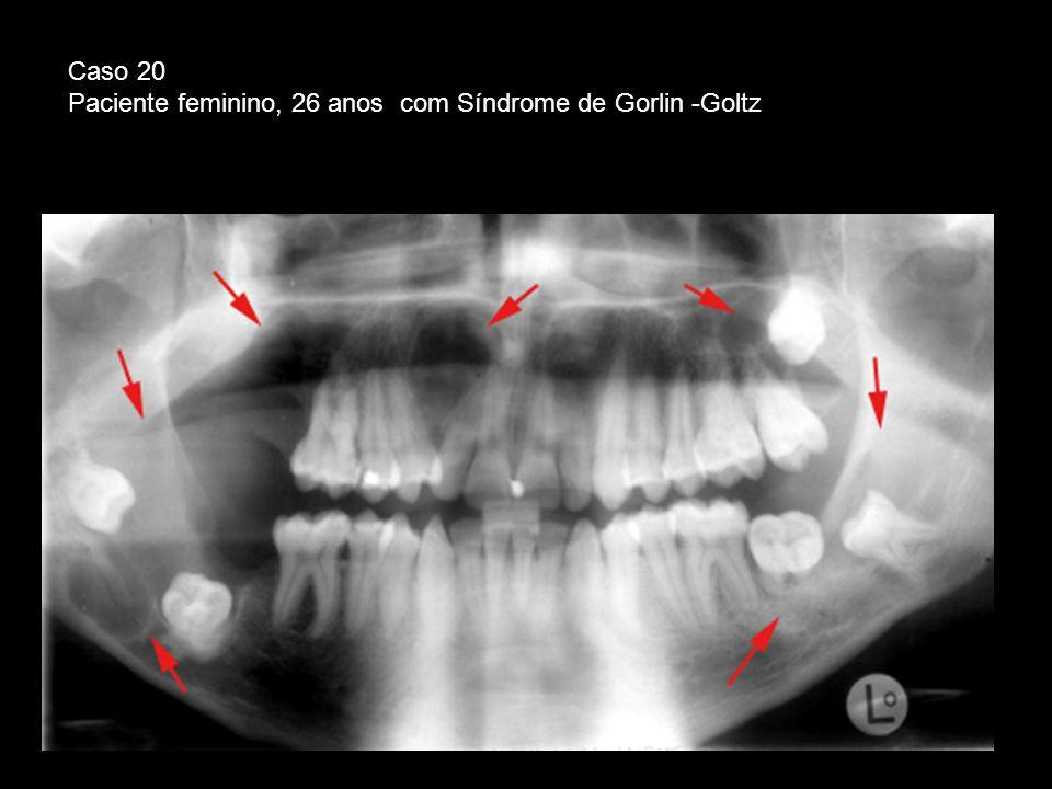 Paciente feminino, 26 anos com Síndrome de Gorlin -Goltz