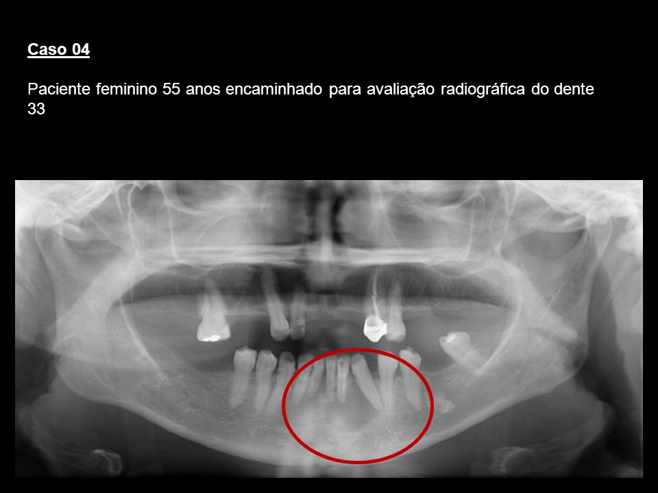 Caso 04Paciente feminino 55 anos encaminhado para avaliação radiográfica do dente 33. Cisto Periapical.