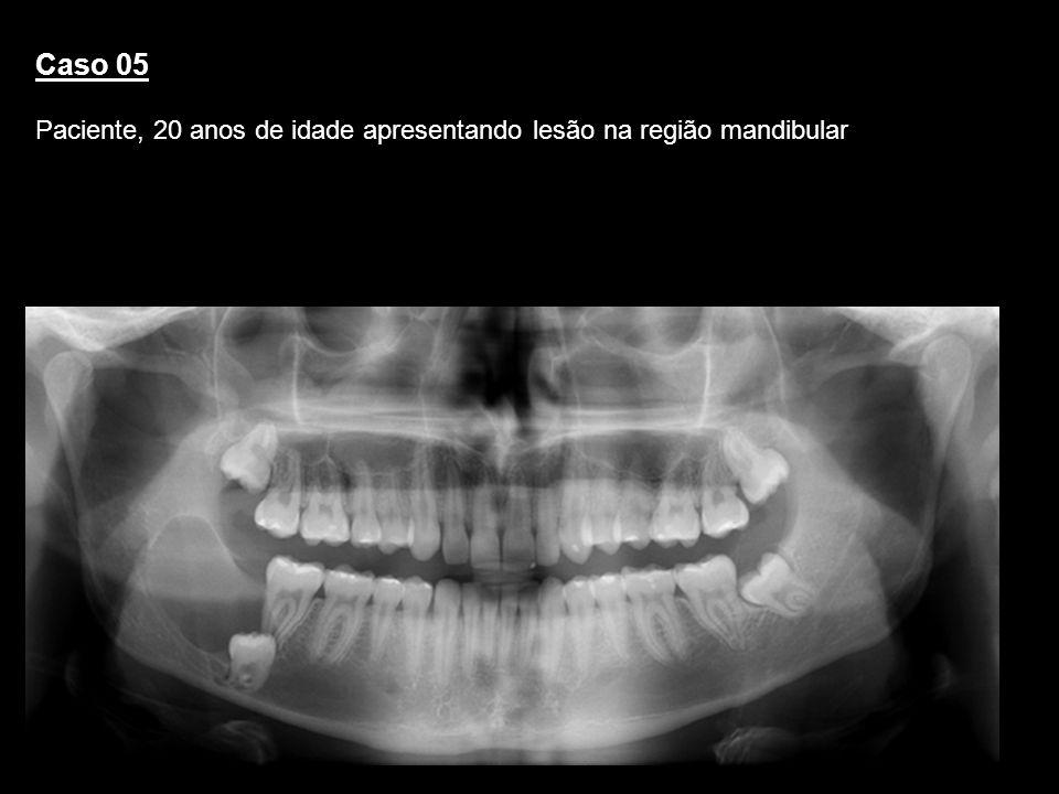 Caso 05Paciente, 20 anos de idade apresentando lesão na região mandibular. Queratocisto. RELATO.