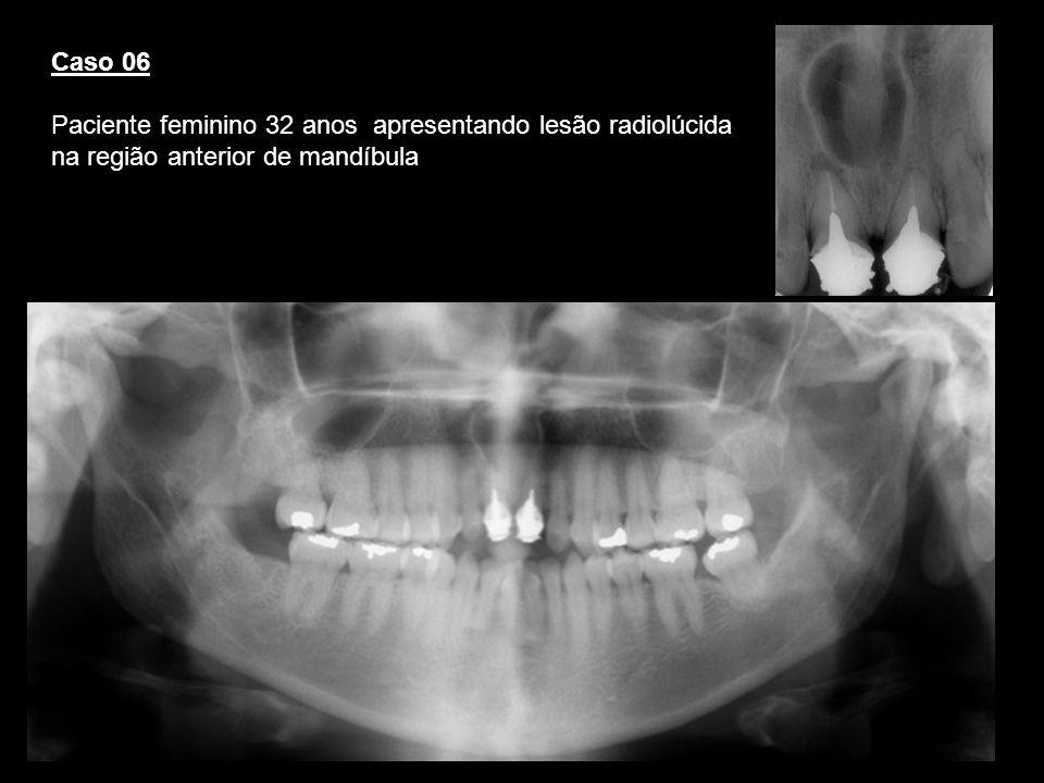 Caso 06Paciente feminino 32 anos apresentando lesão radiolúcida na região anterior de mandíbula. Cisto ducto nasopalatino.