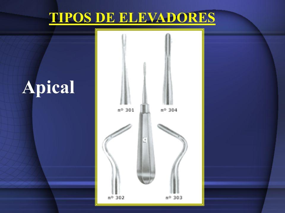 TIPOS DE ELEVADORES Apical