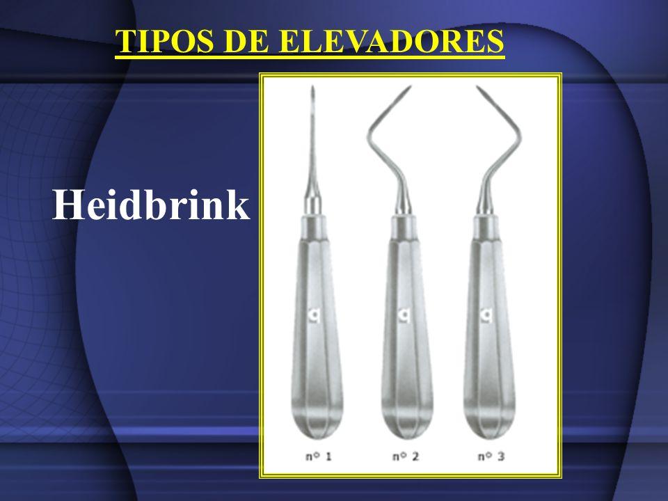 TIPOS DE ELEVADORES Heidbrink