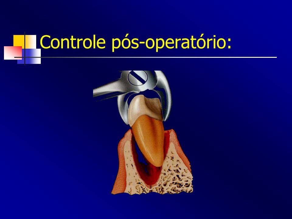 Controle pós-operatório: