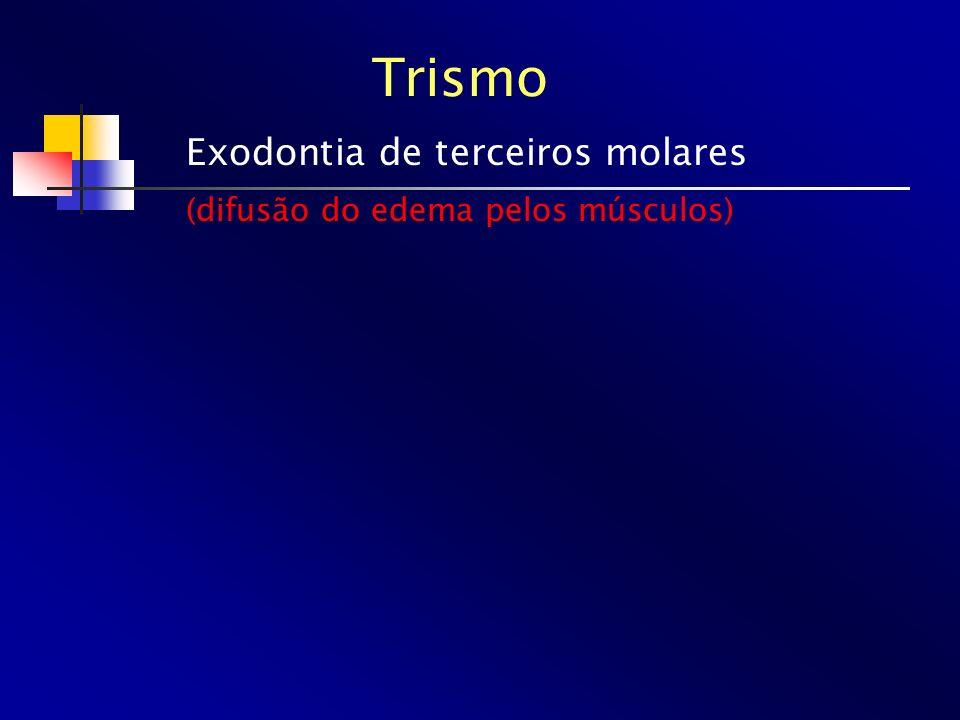 Trismo Exodontia de terceiros molares