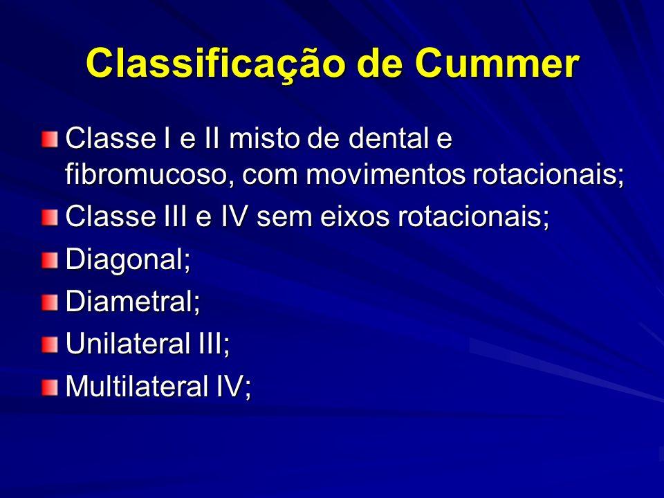 Classificação de Cummer