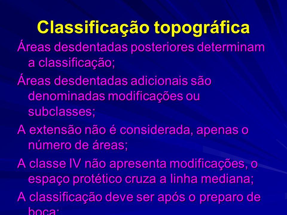 Classificação topográfica
