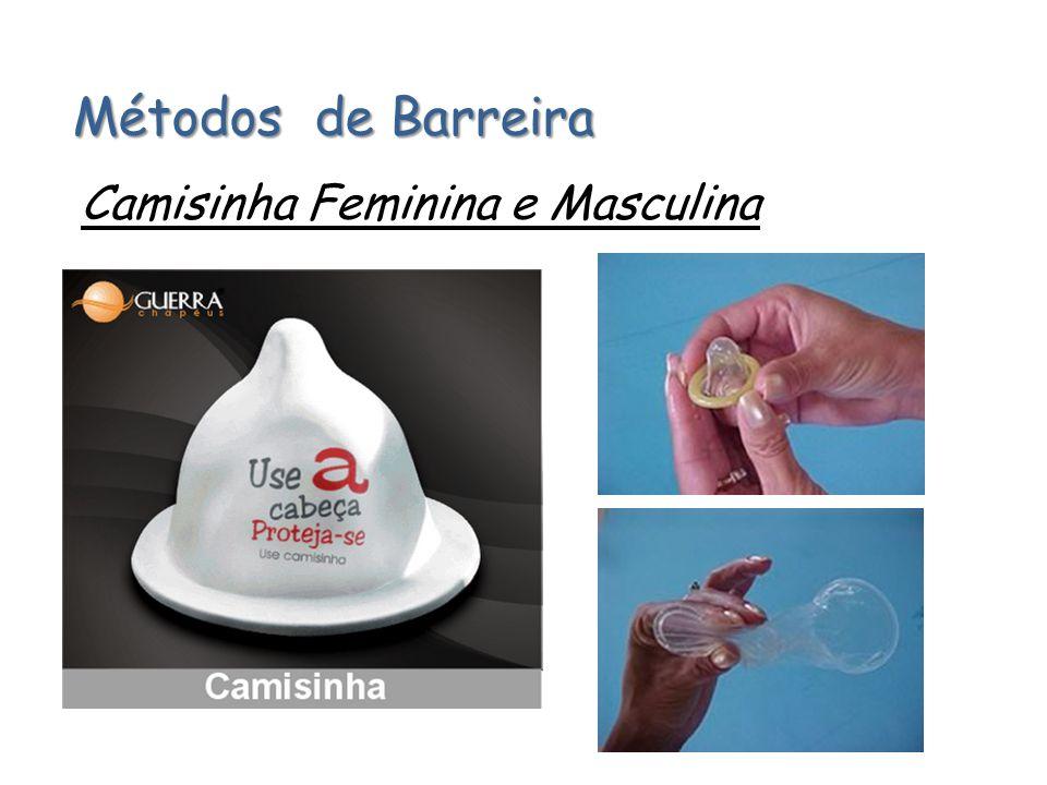 Métodos de Barreira Camisinha Feminina e Masculina