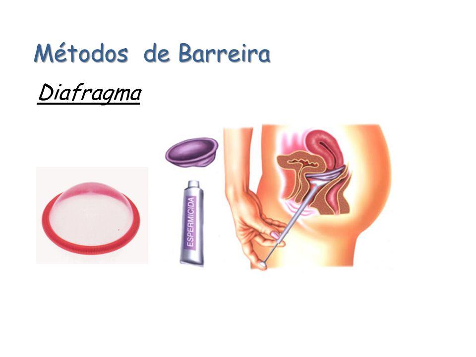 Métodos de Barreira Diafragma