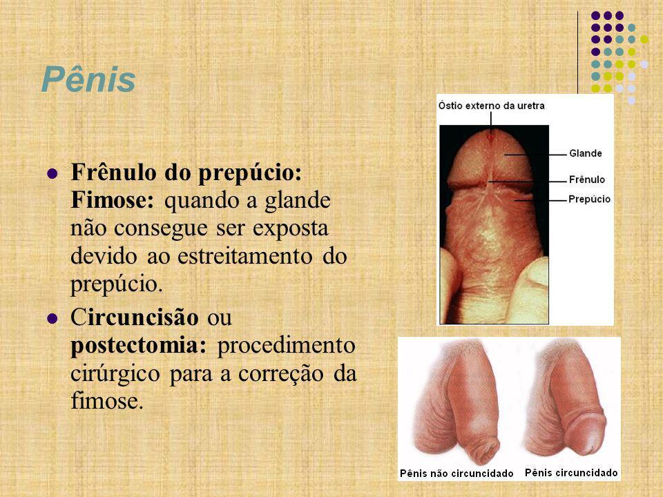 Pênis Frênulo do prepúcio: Fimose: quando a glande não consegue ser exposta devido ao estreitamento do prepúcio.