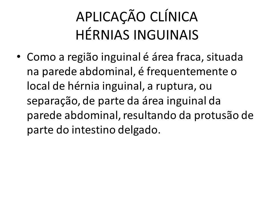 APLICAÇÃO CLÍNICA HÉRNIAS INGUINAIS