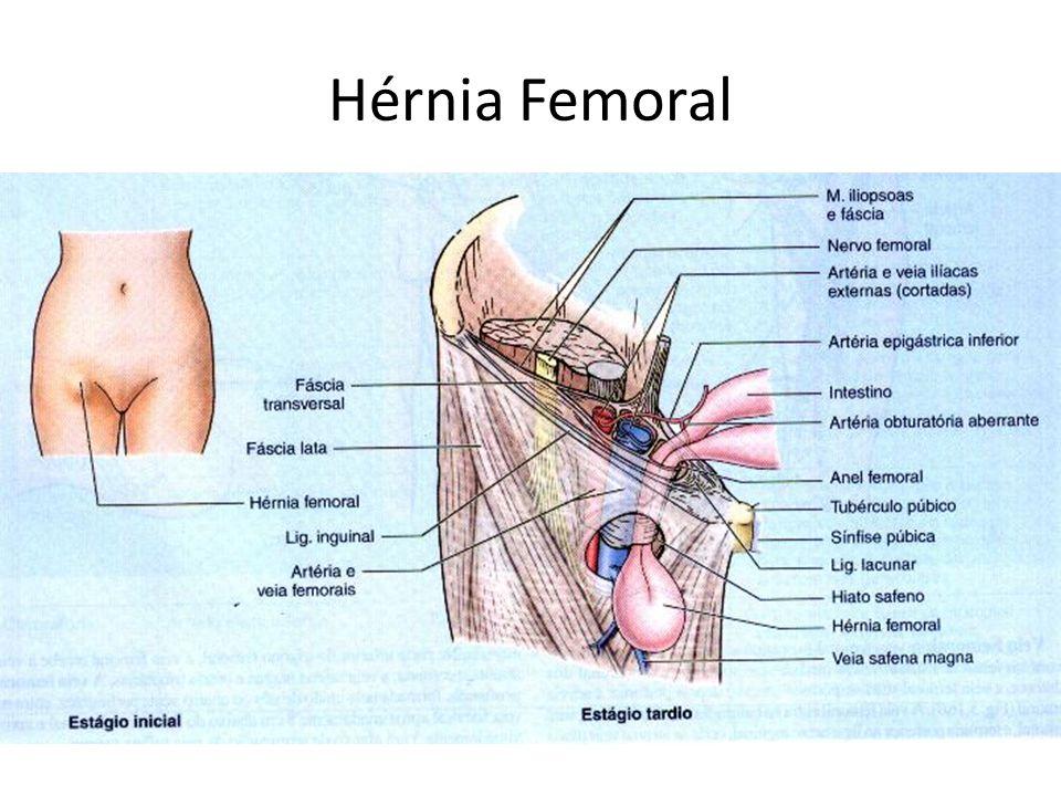Hérnia Femoral