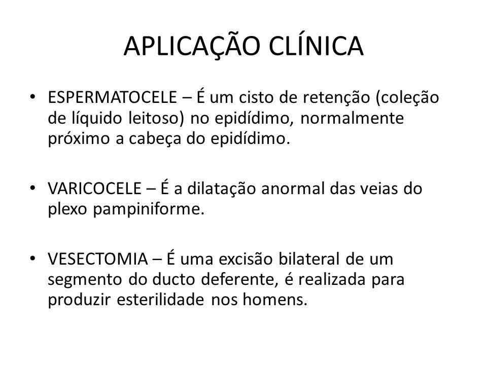 APLICAÇÃO CLÍNICA ESPERMATOCELE – É um cisto de retenção (coleção de líquido leitoso) no epidídimo, normalmente próximo a cabeça do epidídimo.
