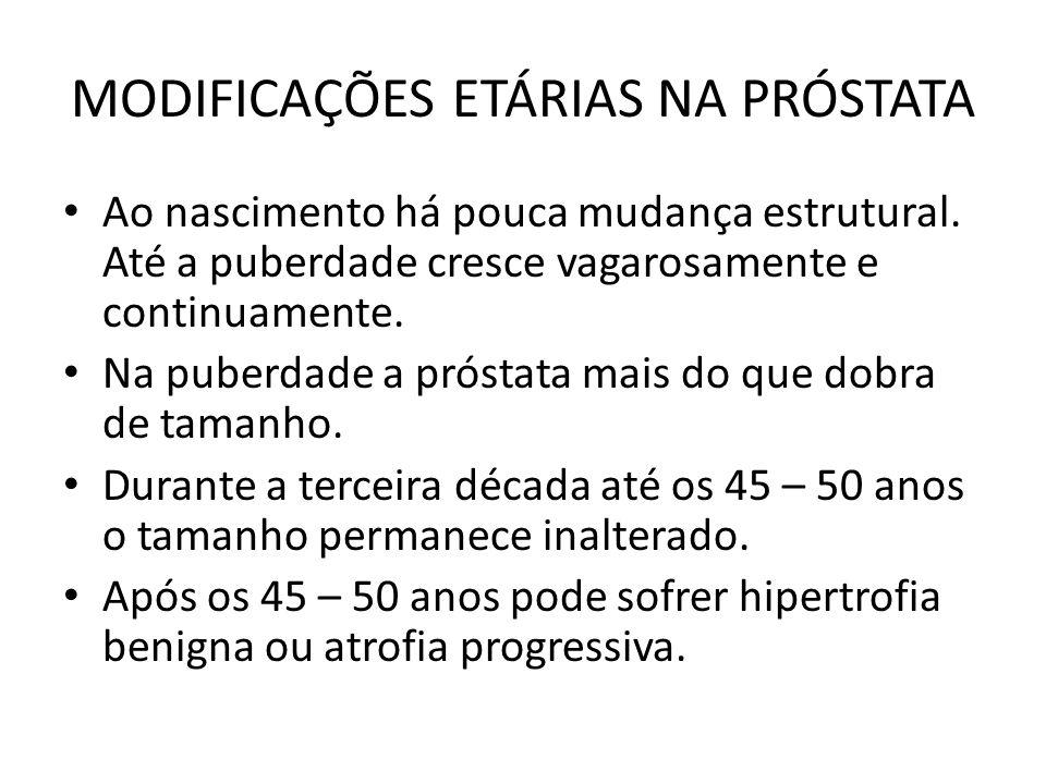 MODIFICAÇÕES ETÁRIAS NA PRÓSTATA