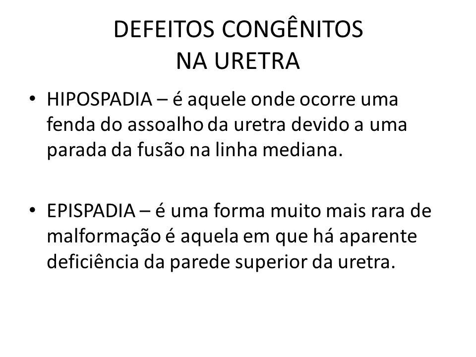 DEFEITOS CONGÊNITOS NA URETRA