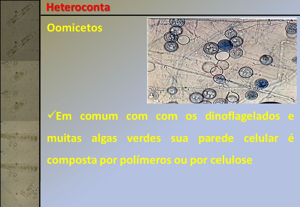 Heteroconta Oomicetos.