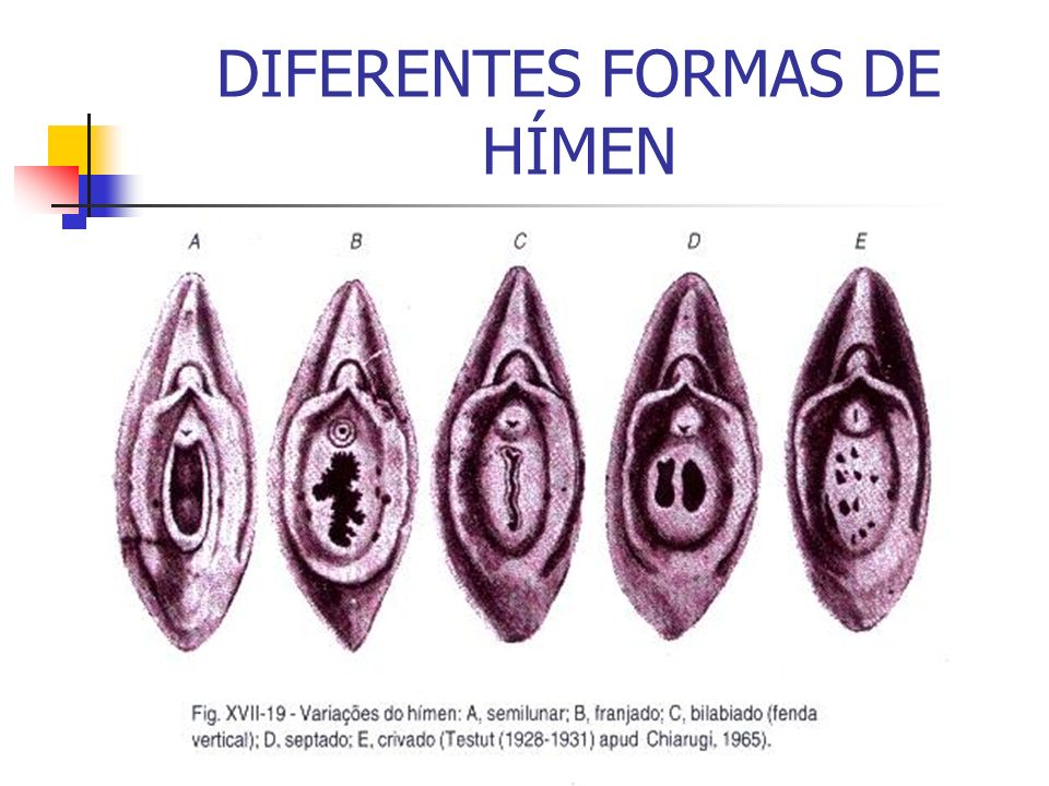 DIFERENTES FORMAS DE HÍMEN